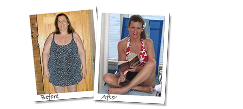Kim's great results with her Gastric Sleeve before and after