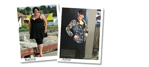 Monica's Gastric Sleeve Surgery before and after picure