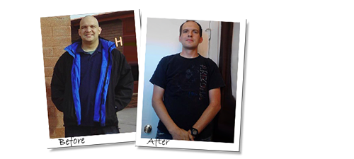 Jeremy's Gastric Sleeve in Mexico before and after picture