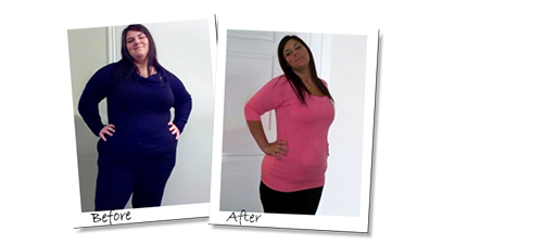 Katie's Gastric Sleeve mexico before and after