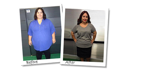 Mayra's Gastric Sleeve before surgery before and after