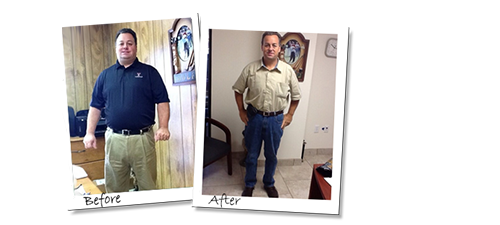 Carl's Gastric Sleeve Mexico before and after picture