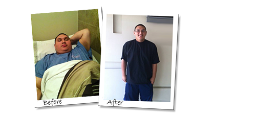 Tony's Gastric Sleeve before and after picture