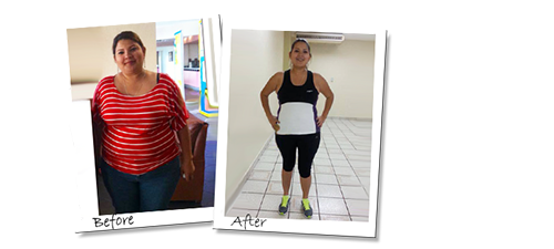 Jessica's before and after pictures from her gastric sleeve surgery
