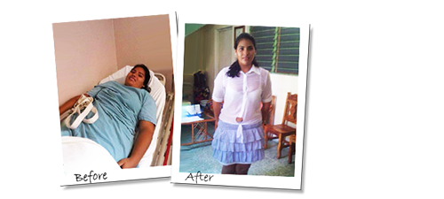 Vanessa in just 6 months with Gastric Sleeve surgery in Mexico