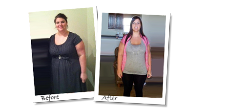 Andrea happy with her results with gastric sleeve surgery