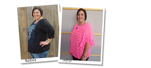 Gastric Sleeve before and after12